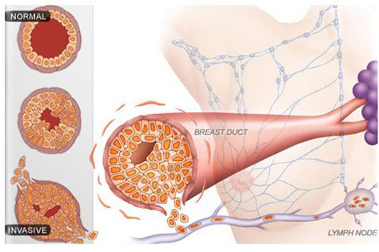 cancer limfatic stadii)